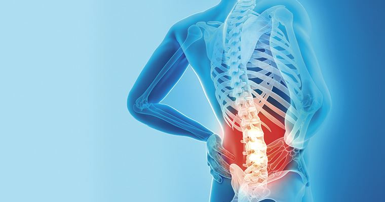 PILATES & EJERCICIO : el dolor lumbar crónico