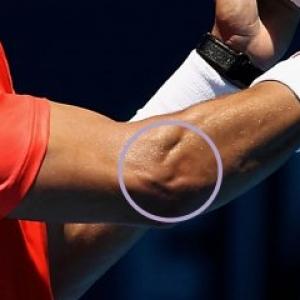 DOLOR DE CODO: epicondilítis o codo de tenista